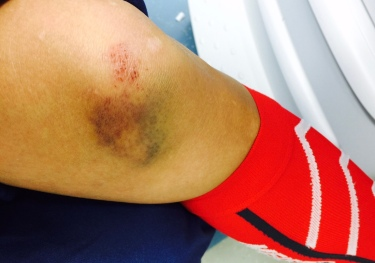 Fell while running
